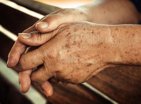 skin hand pigmentation , doi moi tren da tay , kem tri doi moi tay