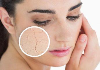 Tại sao da bị mất nước? cách khắc phục da khô, bong tróc